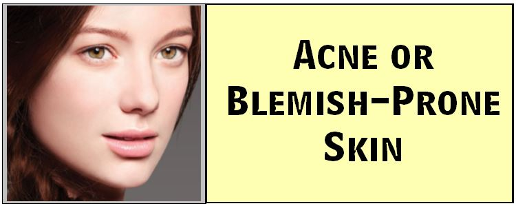 Acne or Blemish Prone Skin